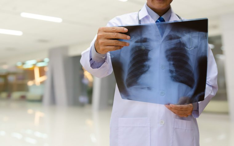 A pledge of $1.05 million will support a new lung disease research program at the University of Louisville.