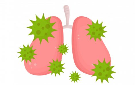COPD Patients' High Glucose in Airways May Be Linked to Increased Risk of Bacterial Infections